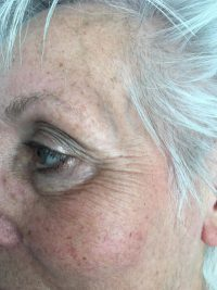 Natural Face Lifting voor